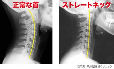 ストレートネック 首肩こり 新百合ヶ丘 鍼灸マッサージ さいとう治療院