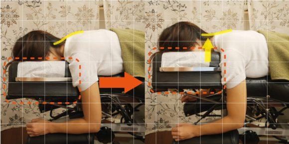 矯正ベッドによる首の矯正