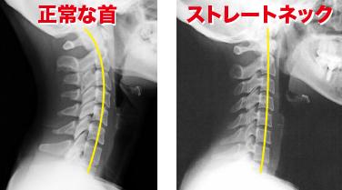 正常な首とストレートネックのレントゲン写真